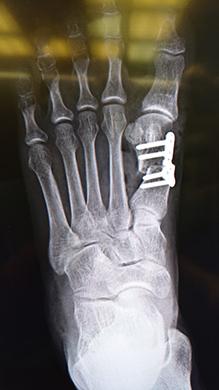 外反母趾治療手術用インプラントと手術用ツールの開発写真1